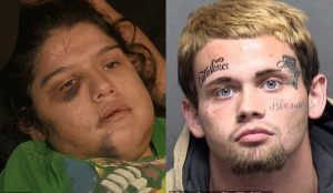 Man, 19, arrested for carving his name with knife into his girlfriend's forehead (Photos)