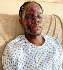 Man Badly Injured After white men screamed f**king N**ger As They Ran over him (Graphic Image)