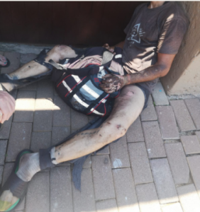 Suspected cable thief in critical condition after being electrocuted