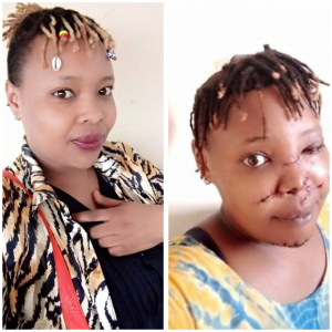 Tragic – Man slashes ex-girlfriend's face with sword